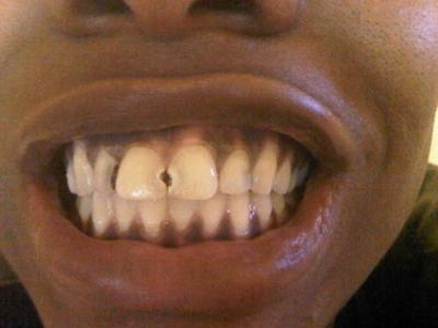 Brown Spots on Baby Teeth http://www.dentalinsurancecare.com/brown-spots-in-between-teeth.html