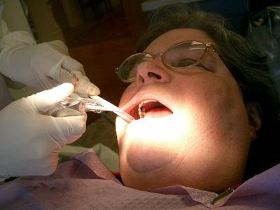 Aetna Dental Insurance Plan
