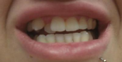 Braces for teeth: My teeth