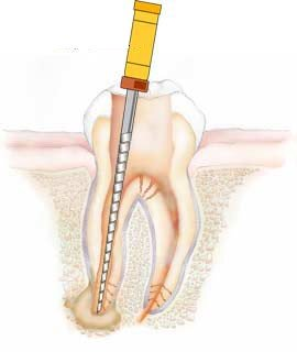 Pain after Root Canal